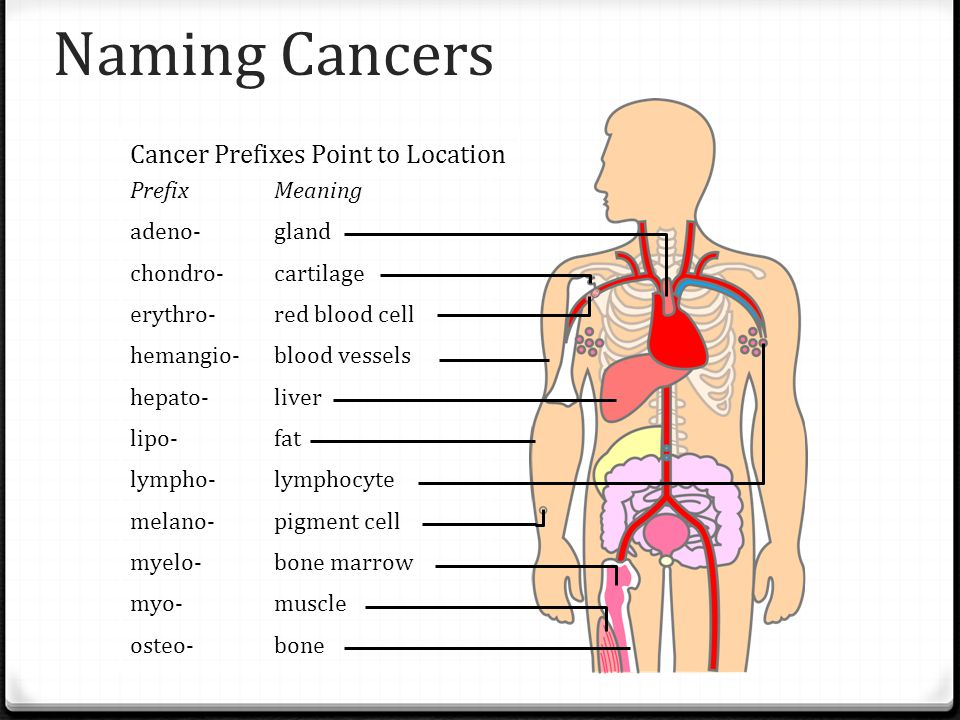 Naming Cancers Cancer Prefixes Point to Location. Prefix Meaning. adeno- gland. chondro- cartilage.