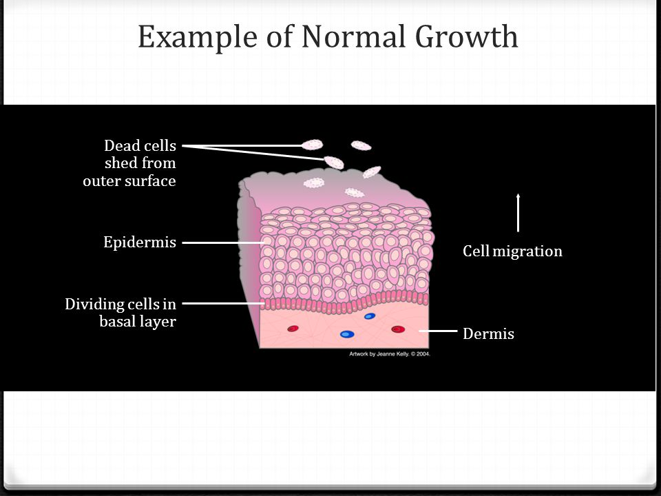 Example of Normal Growth