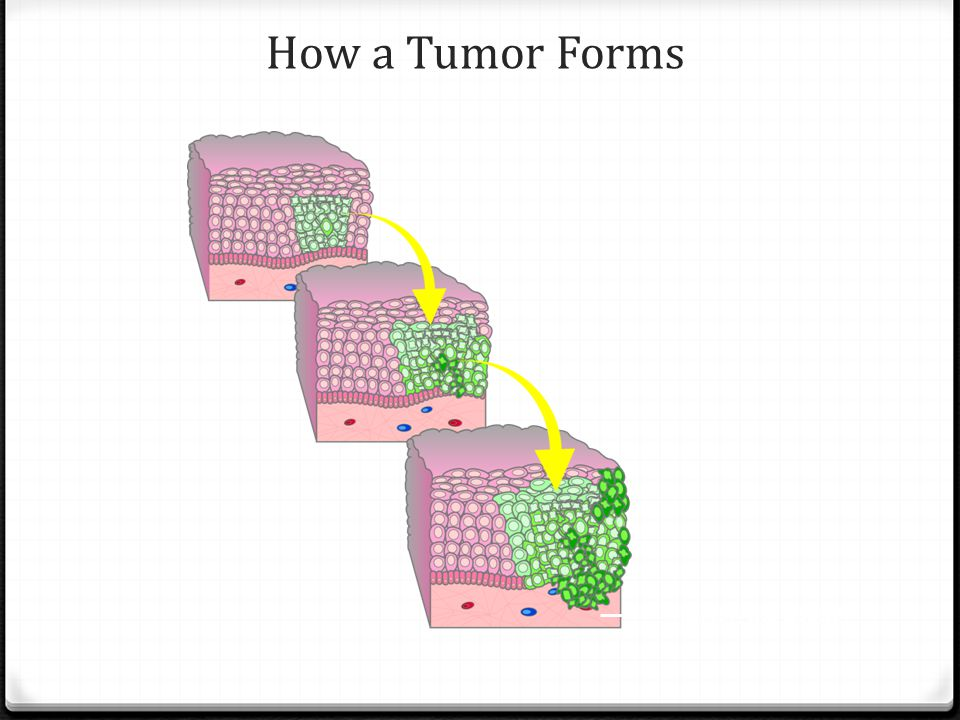 How a Tumor Forms Underlying tissue