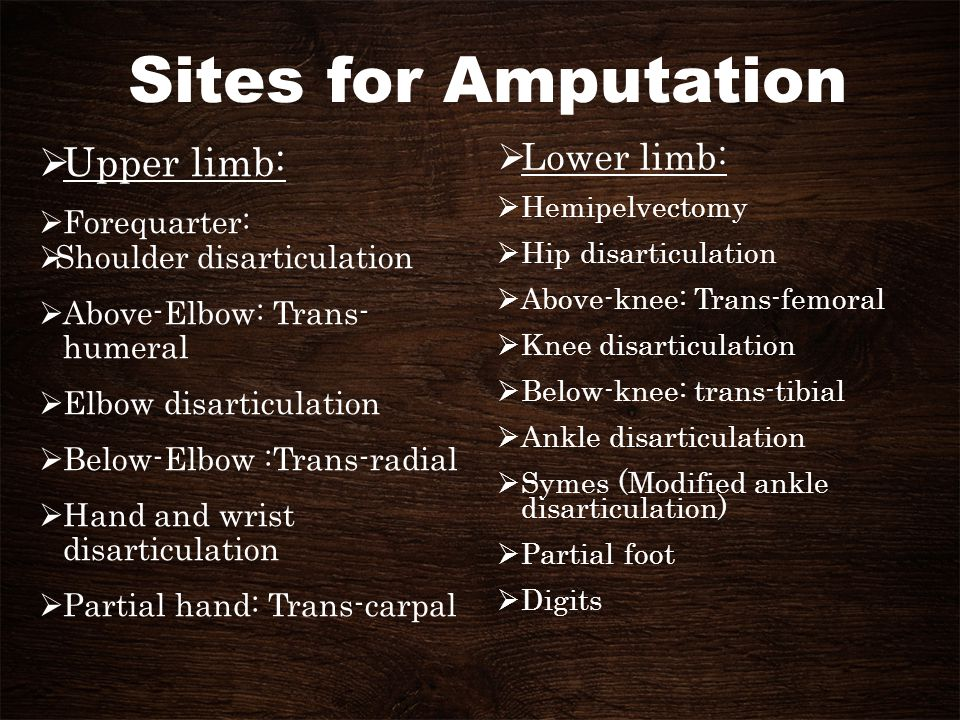 Sites for Amputation Upper limb: Lower limb: Forequarter: