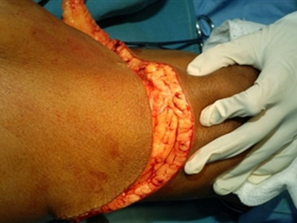 Incision is made and deepened as far deep fascia all around leg, during the amputation of a right leg.