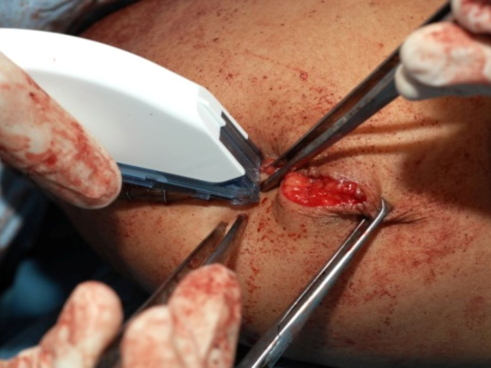 Surgeon places the last of staples closing the wound