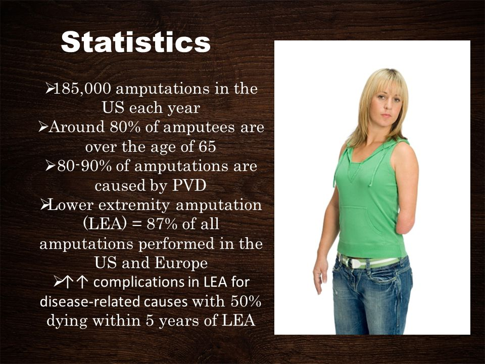 Statistics 185,000 amputations in the US each year