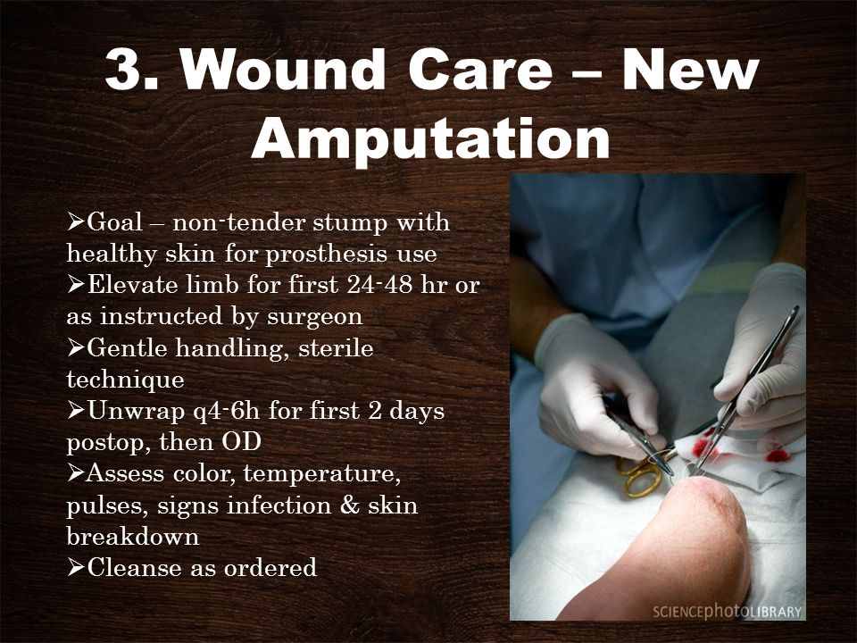 3. Wound Care – New Amputation