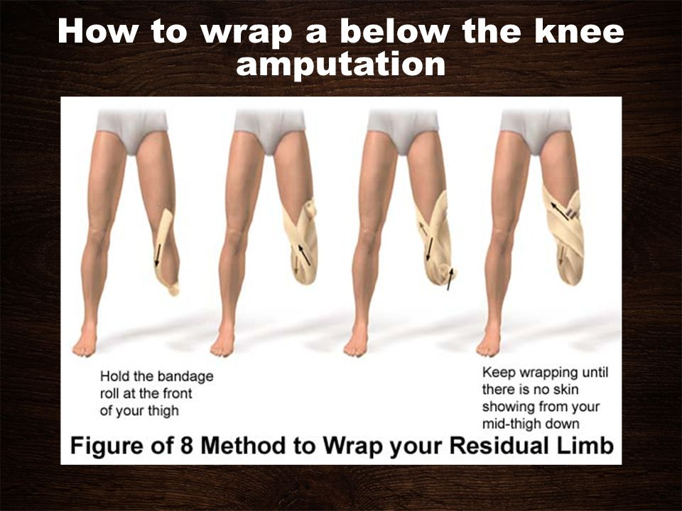 How to wrap a below the knee amputation