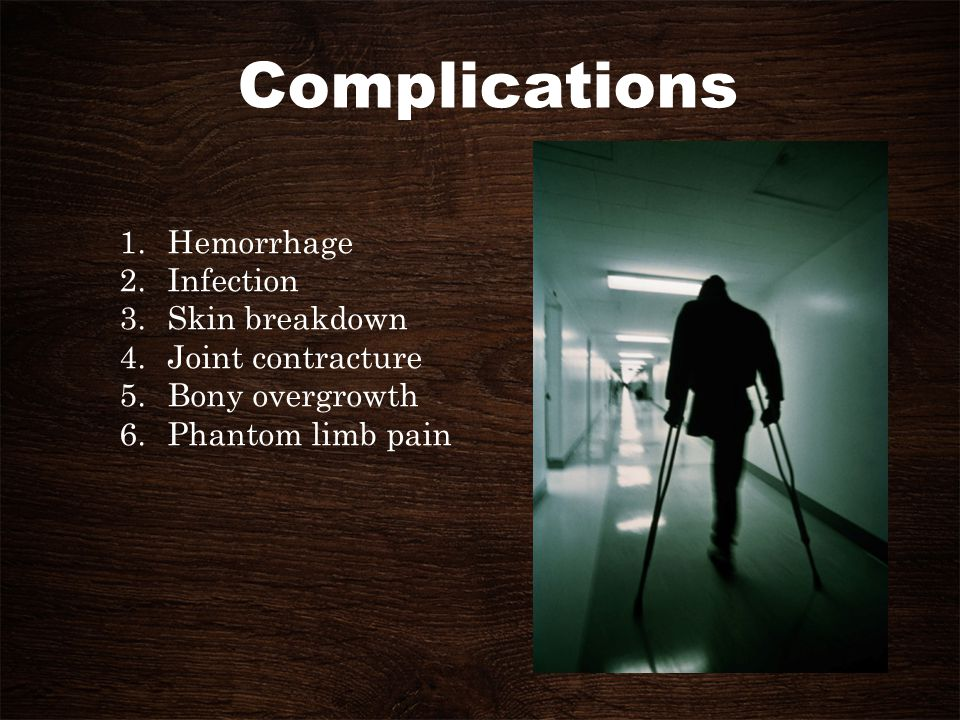 Complications Hemorrhage Infection Skin breakdown Joint contracture