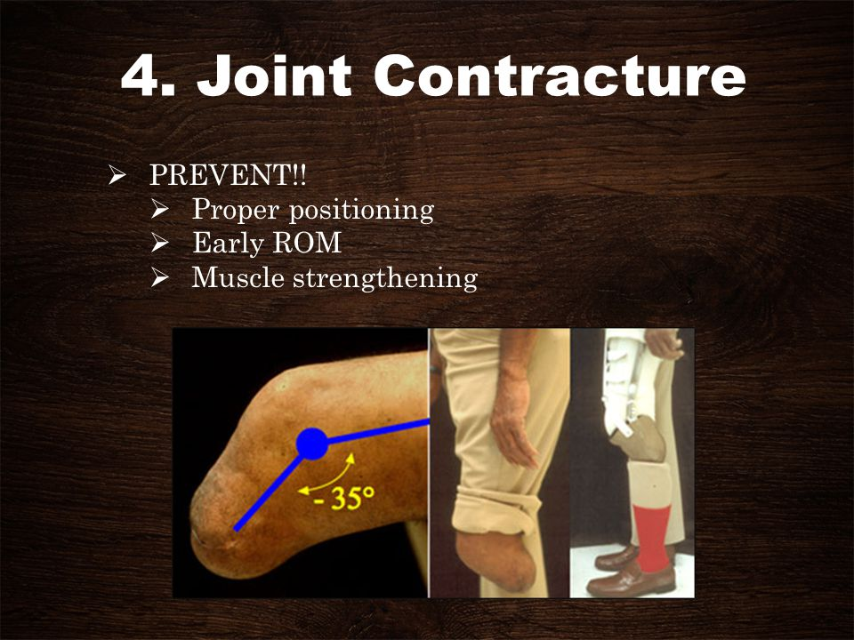 4. Joint Contracture PREVENT!! Proper positioning Early ROM