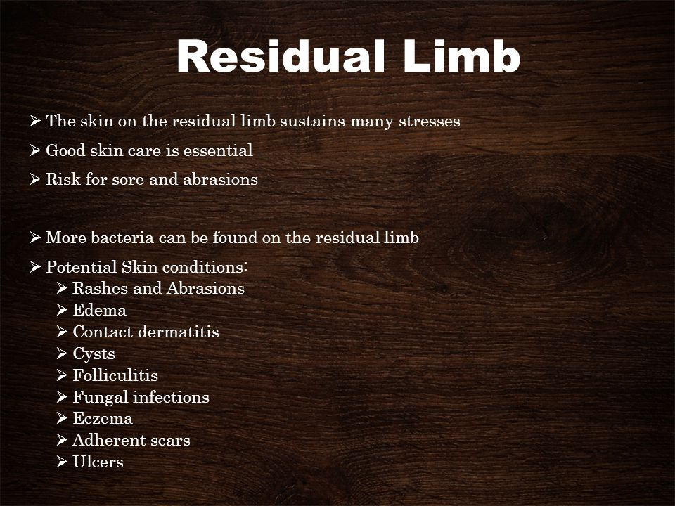 Residual Limb The skin on the residual limb sustains many stresses