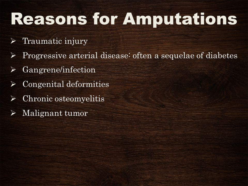 Reasons for Amputations