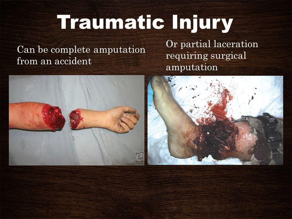 Traumatic Injury Or partial laceration Can be complete amputation