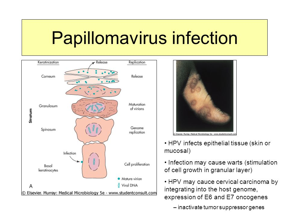 Papillomavirus infection