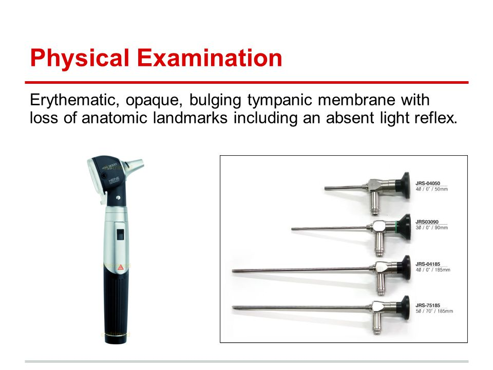 Physical Examination Erythematic, opaque, bulging tympanic membrane with loss of anatomic landmarks including an absent light reflex.