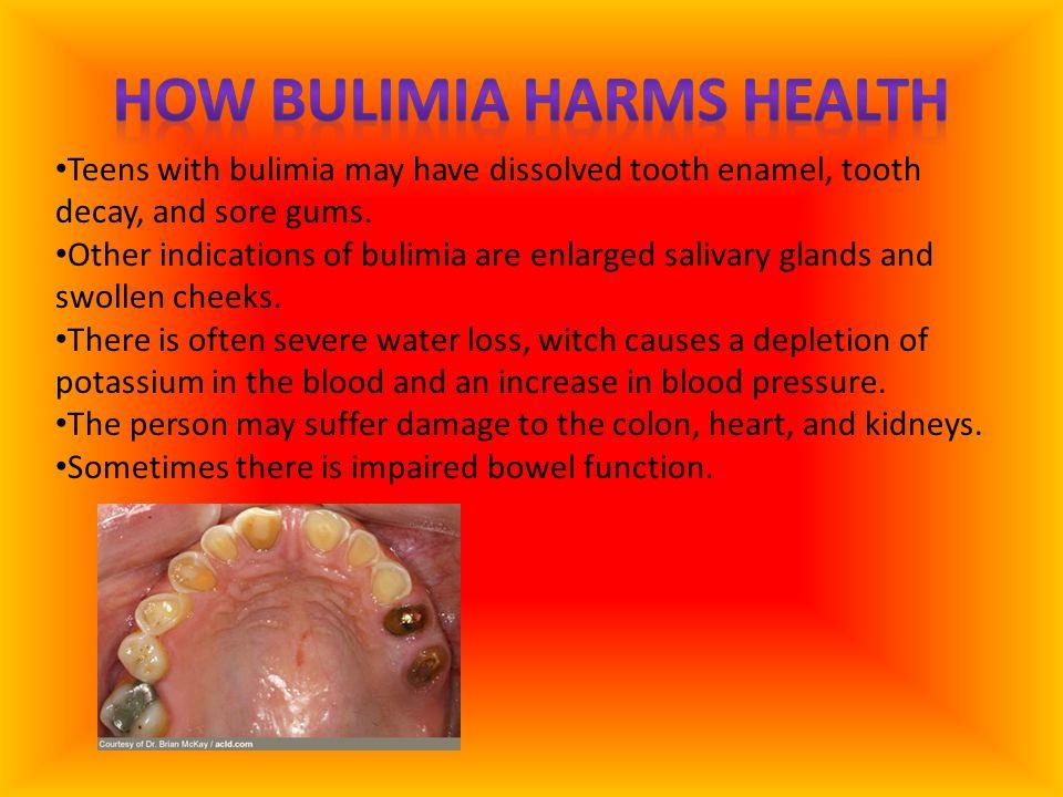 How Bulimia Harms Health