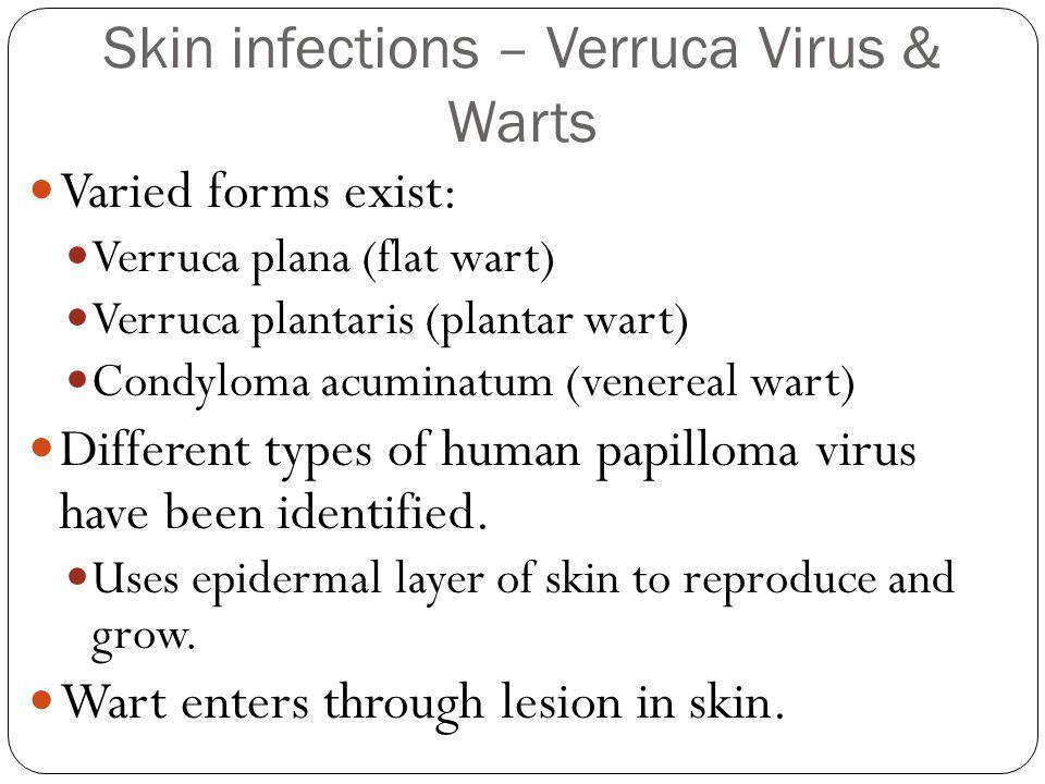 Skin infections – Verruca Virus & Warts