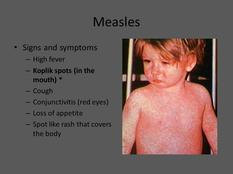 Measles Signs and symptoms High fever Koplik spots (in the mouth) *