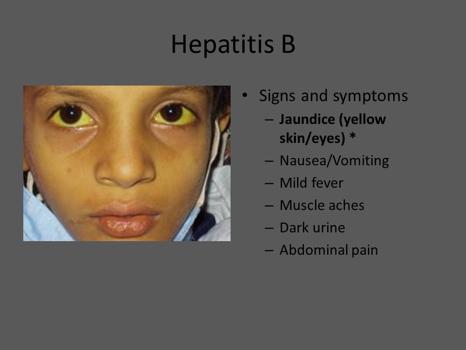 Hepatitis B Signs and symptoms Jaundice (yellow skin/eyes) *