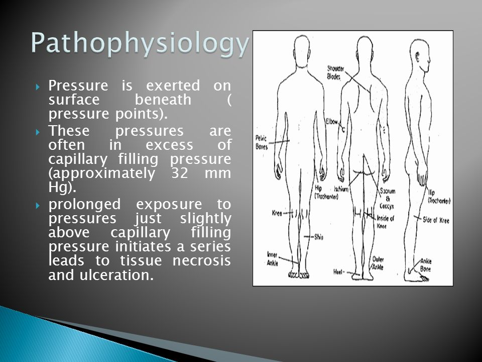 Pathophysiology Pressure is exerted on surface beneath ( pressure points).