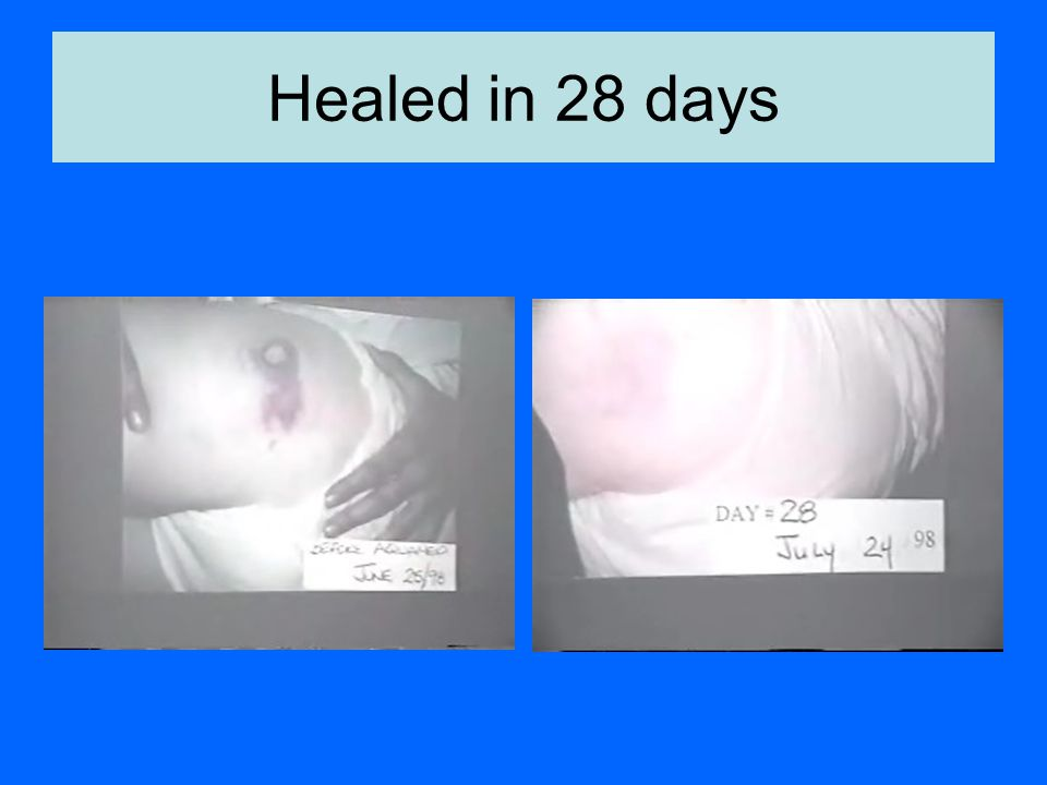 Healed in 28 days
