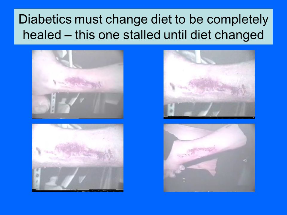Diabetics must change diet to be completely healed – this one stalled until diet changed