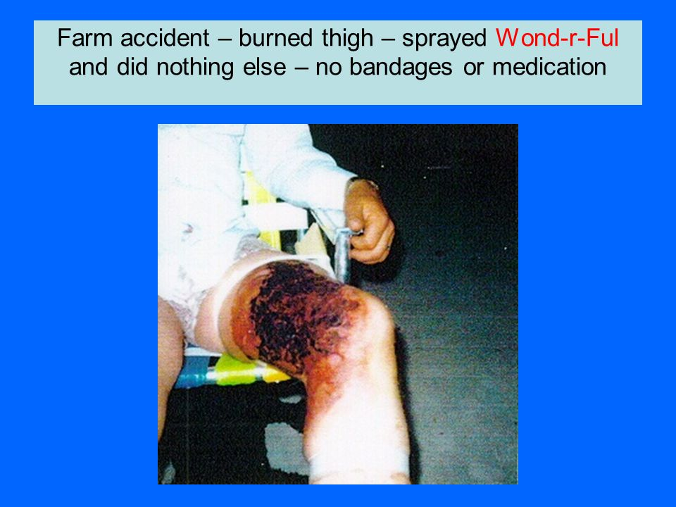 Farm accident – burned thigh – sprayed Wond-r-Ful and did nothing else – no bandages or medication