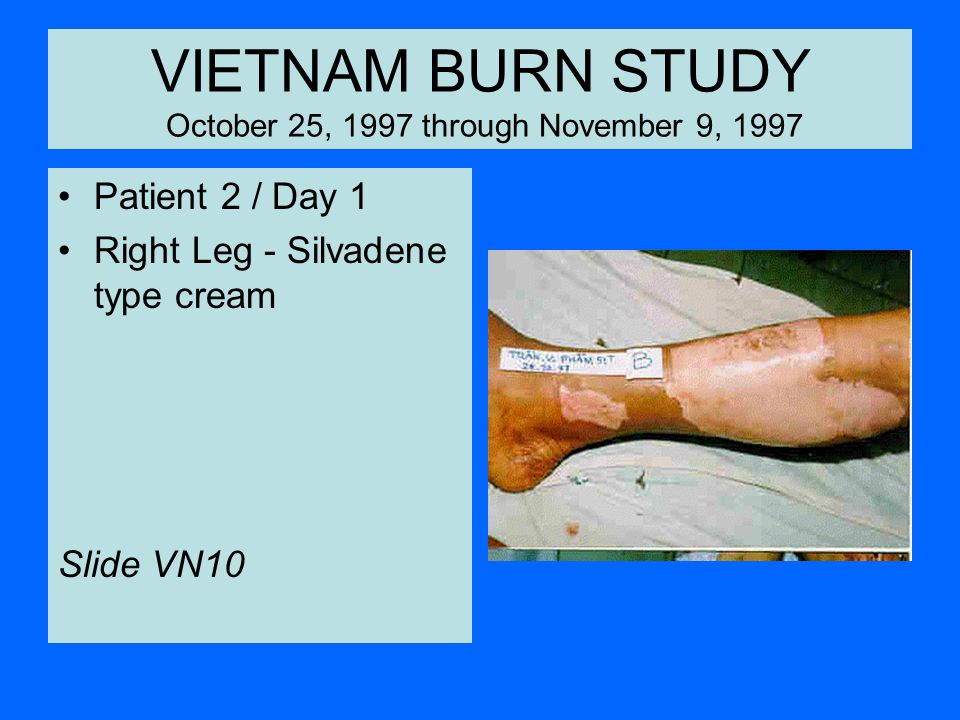 VIETNAM BURN STUDY October 25, 1997 through November 9, 1997