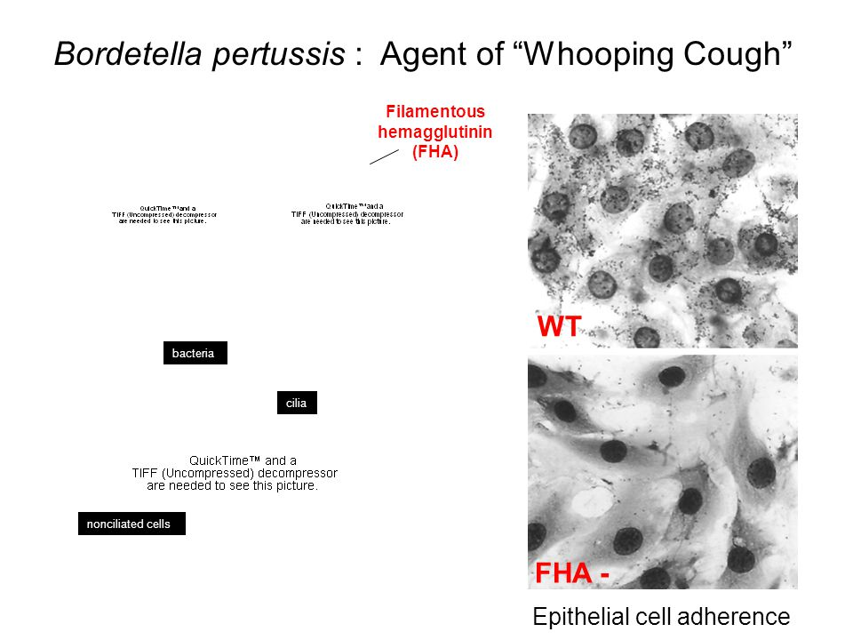 Bordetella pertussis : Agent of Whooping Cough