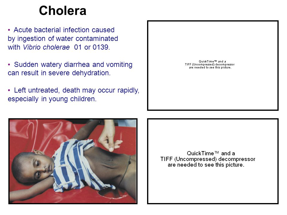 Cholera Acute bacterial infection caused