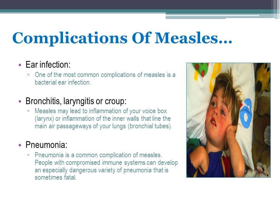 Complications Of Measles…