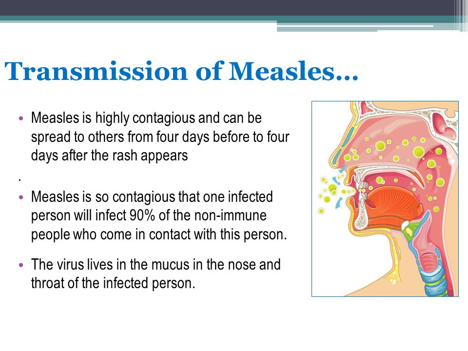 Transmission of Measles…