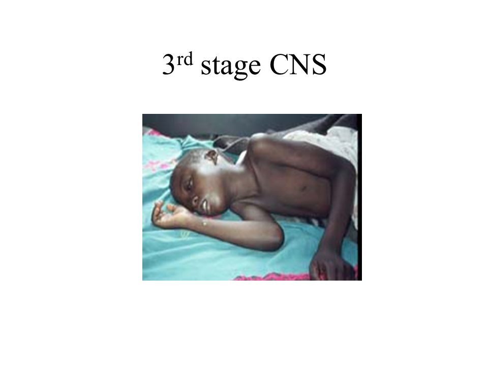 3rd stage CNS