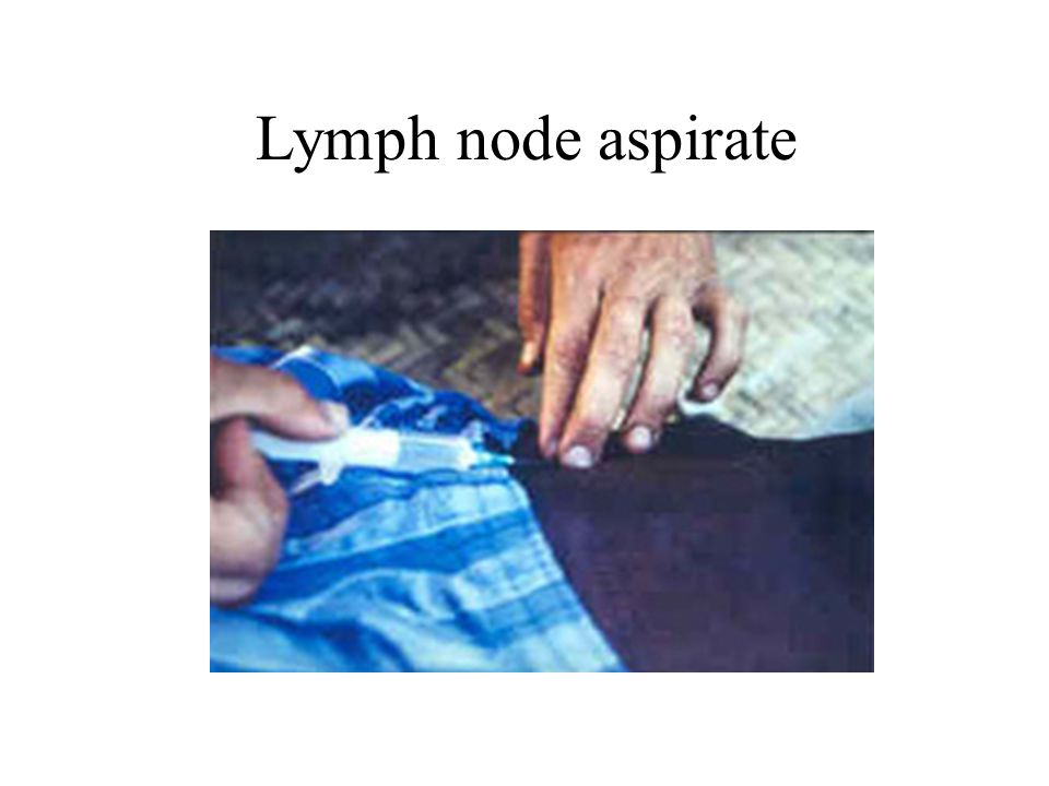 Lymph node aspirate