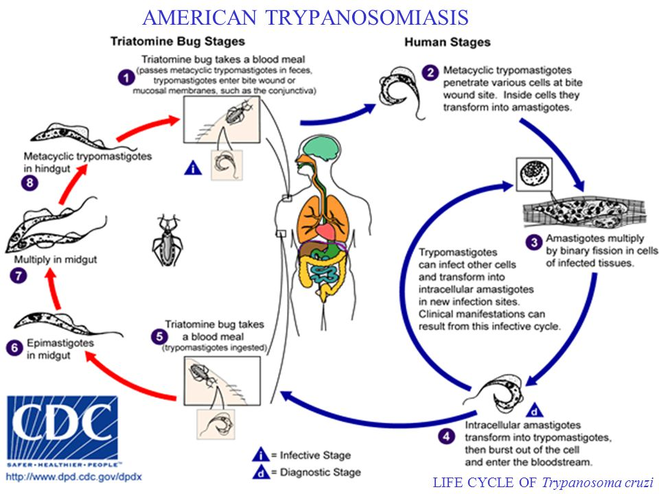 AMERICAN TRYPANOSOMIASIS