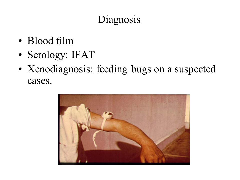 Diagnosis Blood film Serology: IFAT Xenodiagnosis: feeding bugs on a suspected cases.