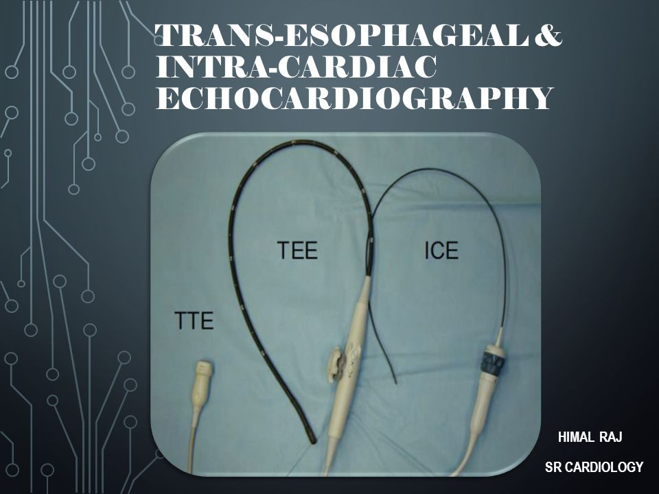 Trans-esophageal & Intra-cardiac Echocardiography