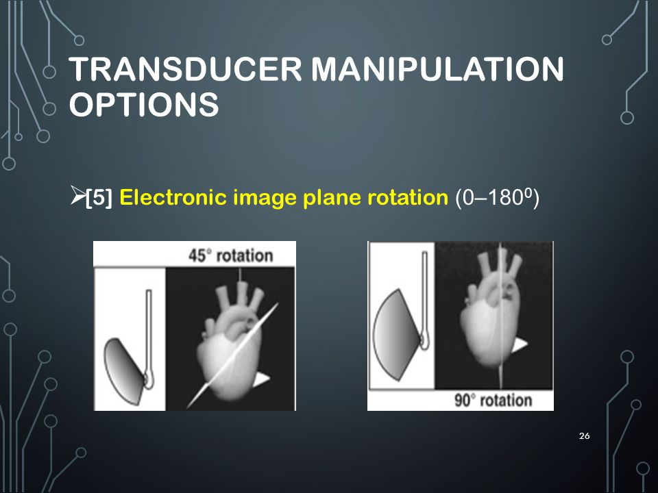 Transducer manipulation options