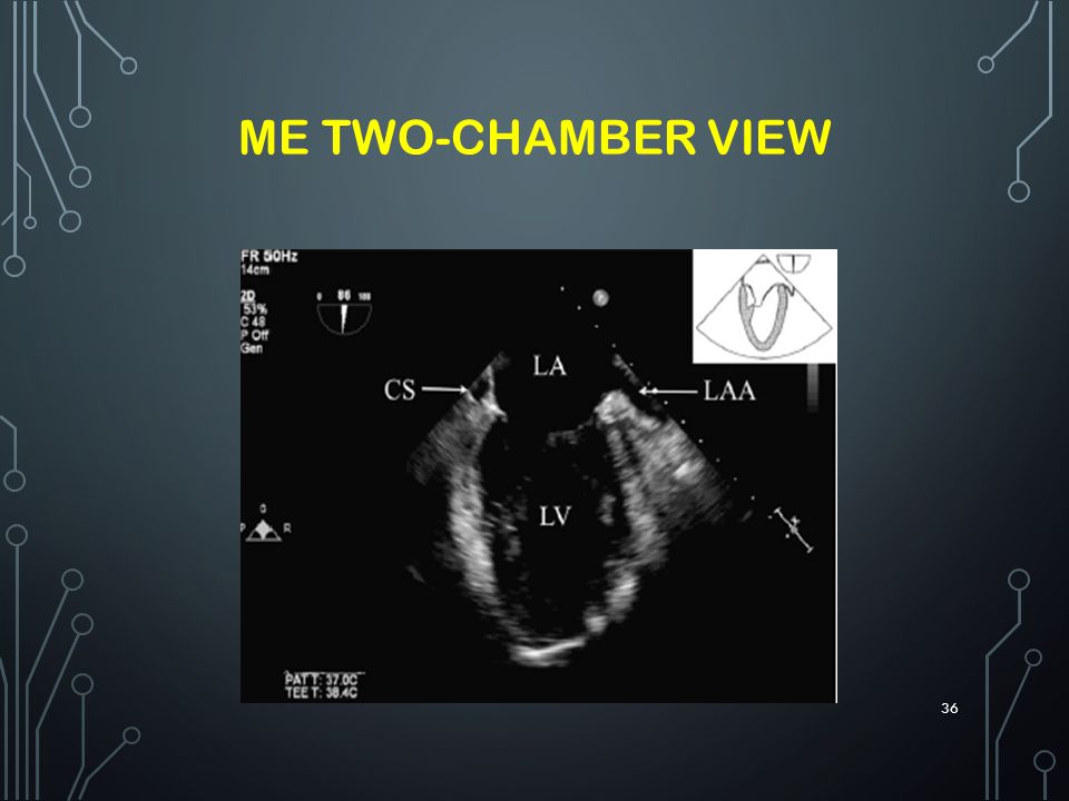 ME TWO-CHAMBER VIEW