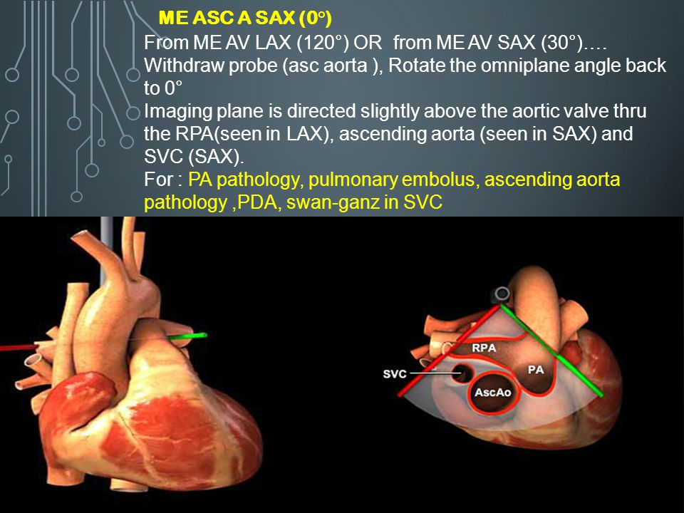 ME Asc A SAX (0°) From ME AV LAX (120°) OR from ME AV SAX (30°)…. Withdraw probe (asc aorta ), Rotate the omniplane angle back to 0°