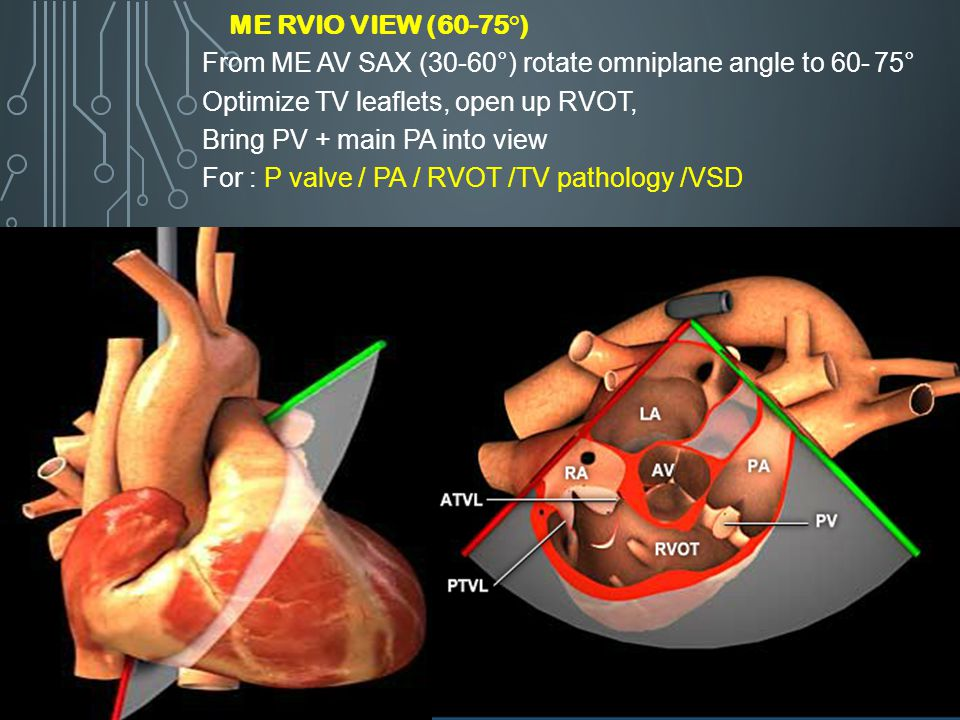 ME RVIO View (60-75°) From ME AV SAX (30-60°) rotate omniplane angle to 60- 75° Optimize TV leaflets, open up RVOT,