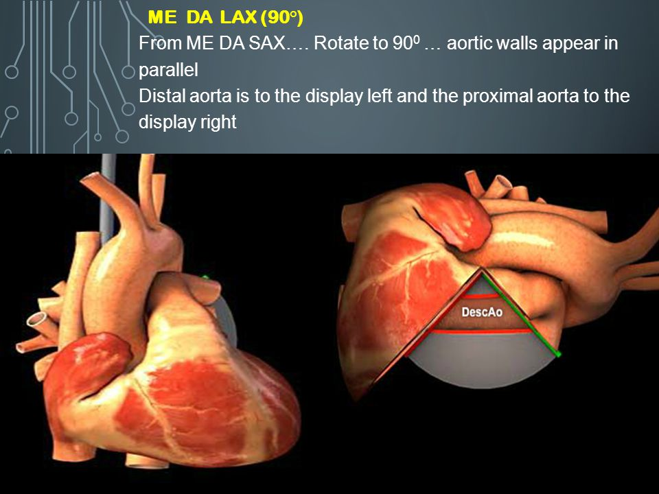 ME DA LAX (90°) From ME DA SAX…. Rotate to 900 … aortic walls appear in parallel.