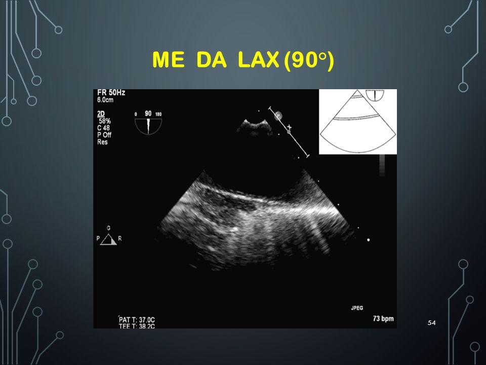 ME DA LAX (90°)