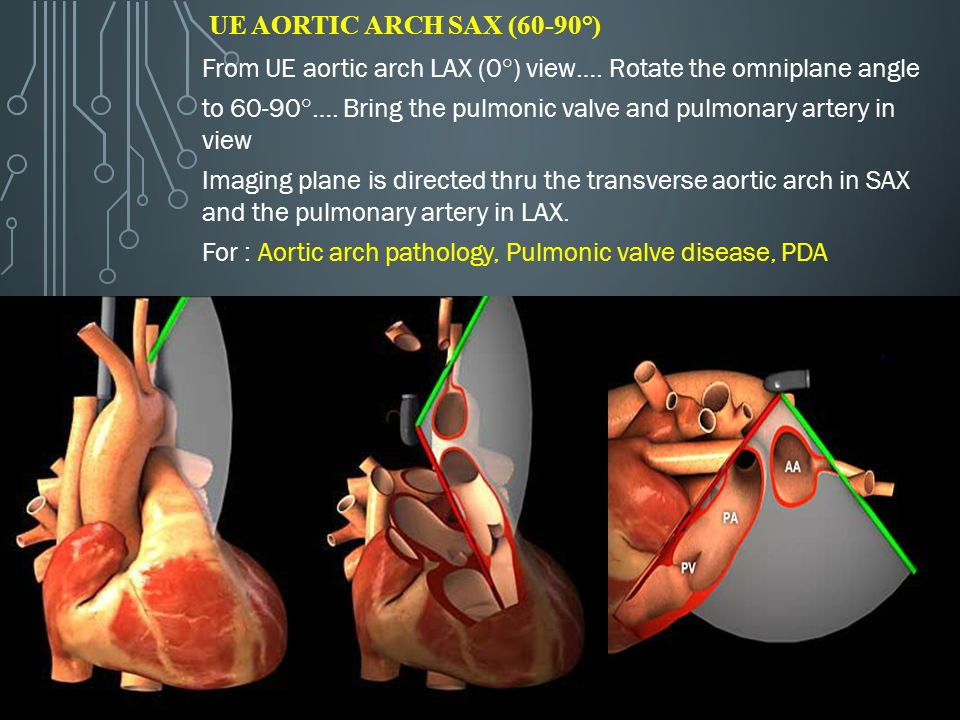 UE Aortic Arch SAX (60-90°) From UE aortic arch LAX (0°) view…. Rotate the omniplane angle.