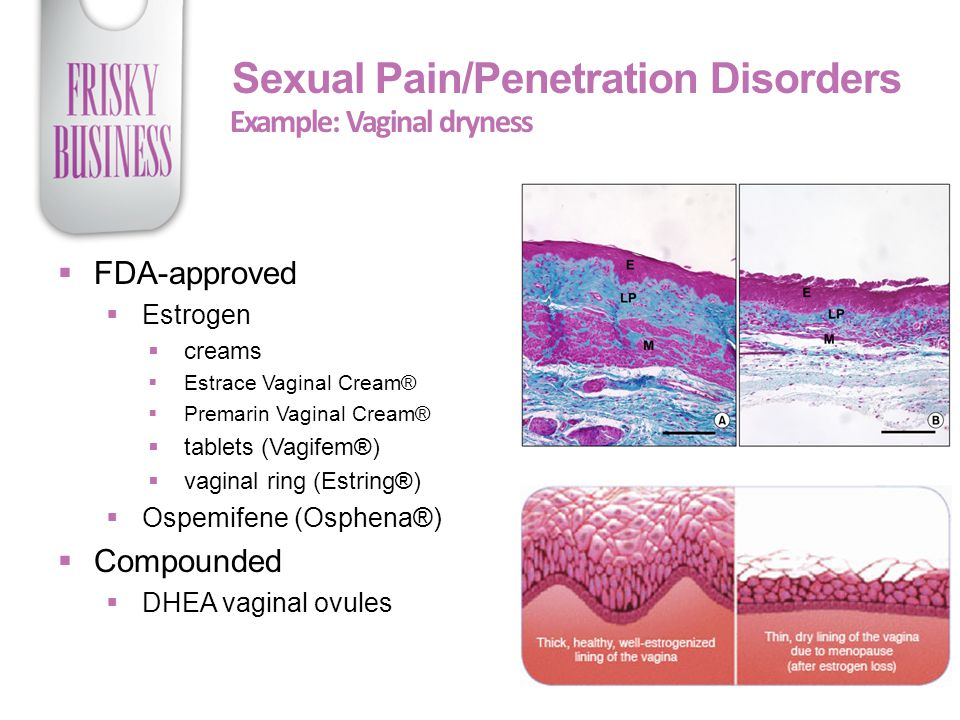 Sexual Pain/Penetration Disorders