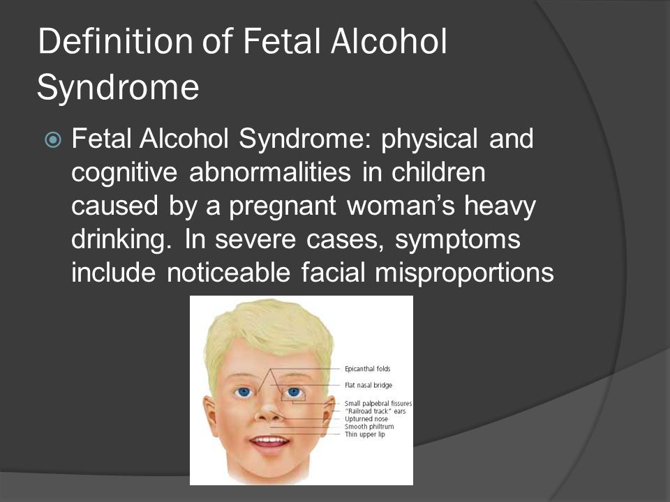 Definition of Fetal Alcohol Syndrome
