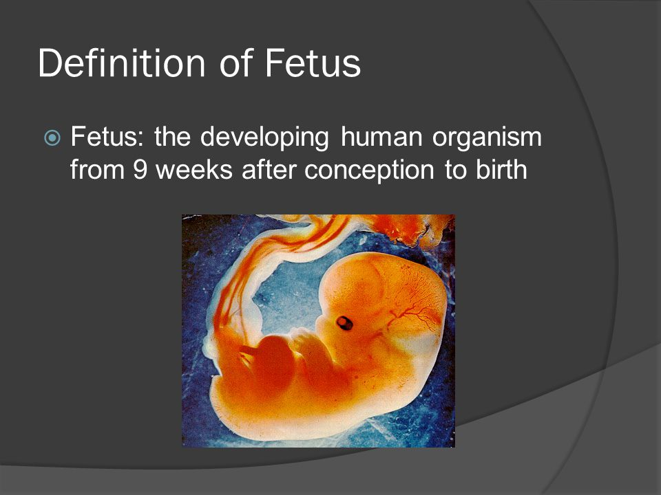 Definition of Fetus Fetus: the developing human organism from 9 weeks after conception to birth
