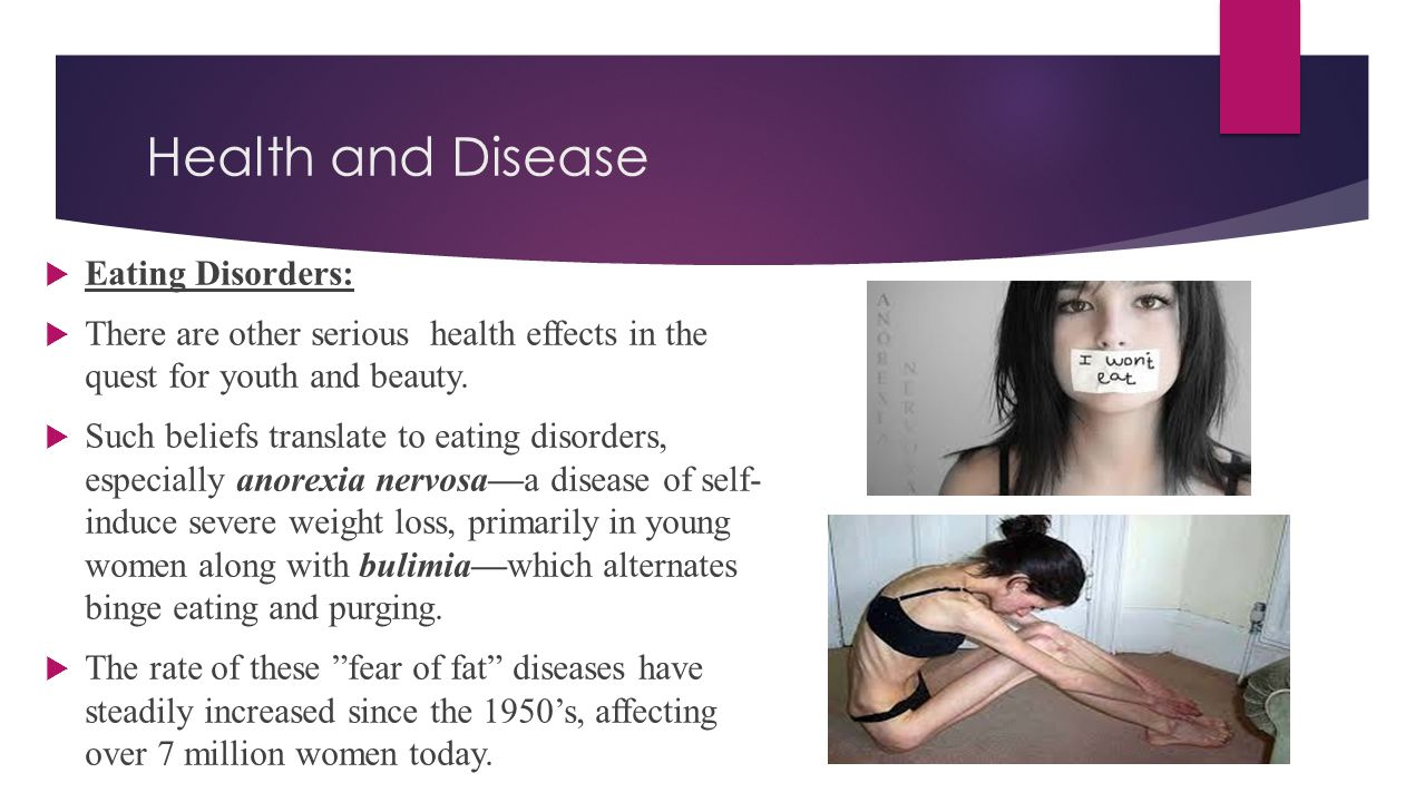 Health and Disease Eating Disorders: