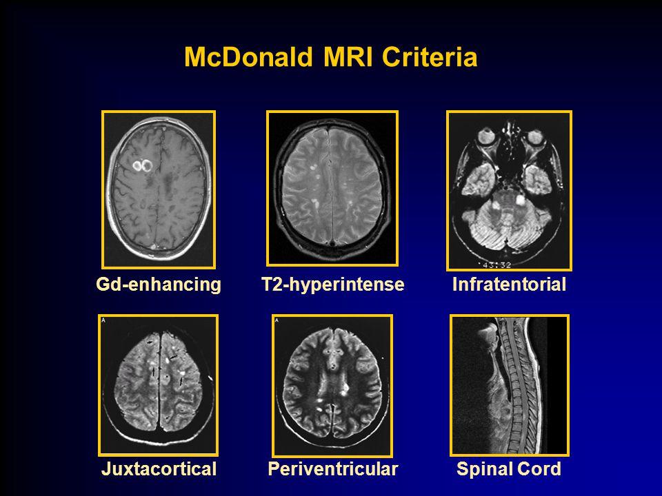 McDonald MRI Criteria Gd-enhancing T2-hyperintense Juxtacortical
