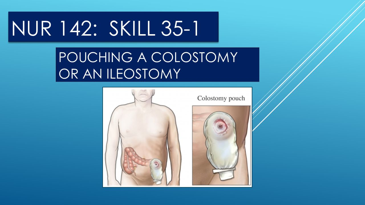 POUCHING A COLOSTOMY OR AN ILEOSTOMY