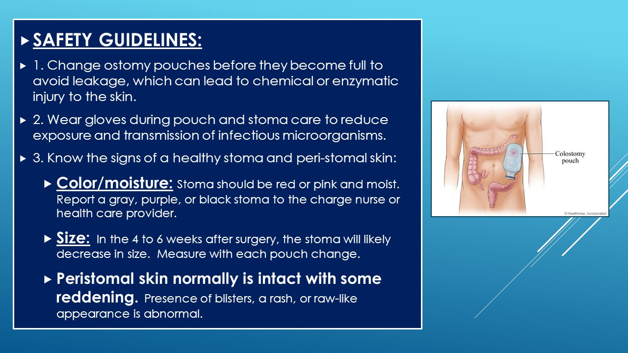 SAFETY GUIDELINES: 1. Change ostomy pouches before they become full to avoid leakage, which can lead to chemical or enzymatic injury to the skin.