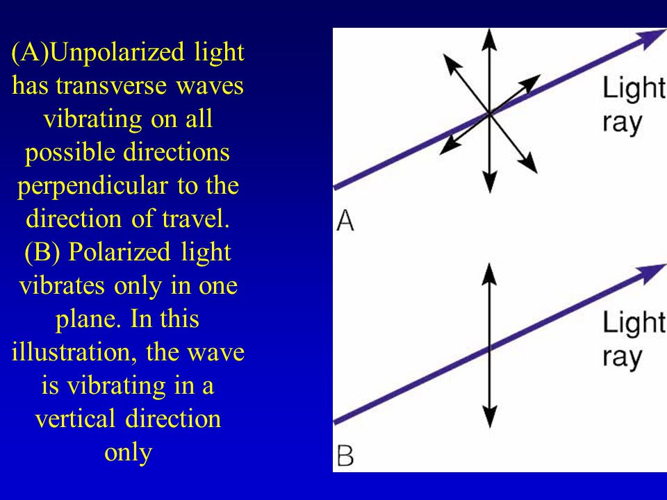 (A)Unpolarized light has transverse waves vibrating on all possible directions perpendicular to the direction of travel.