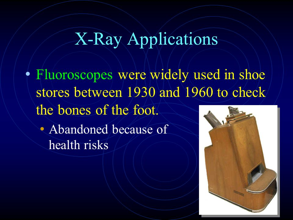 X-Ray Applications Fluoroscopes were widely used in shoe stores between 1930 and 1960 to check the bones of the foot.
